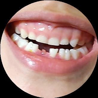 乳歯 抜ける時期